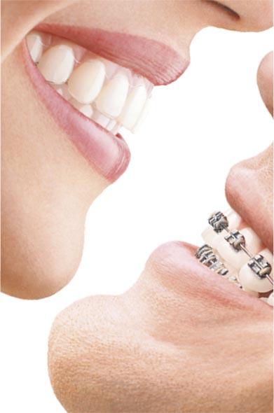 ortodoncia invisible especialista