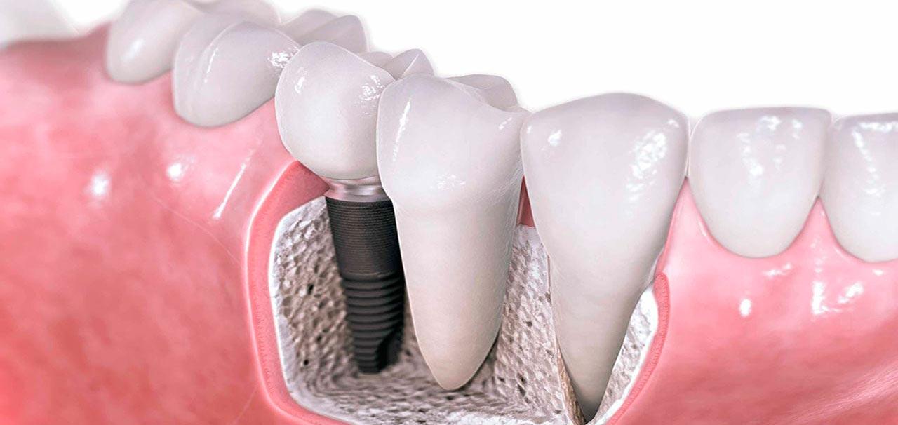 precio implantes dentales en barcelona sant boi de llobregat