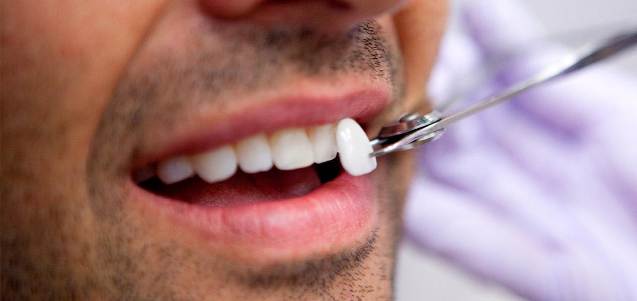 carillas dentales baratas precio en barcelona sant boi de llobrgat
