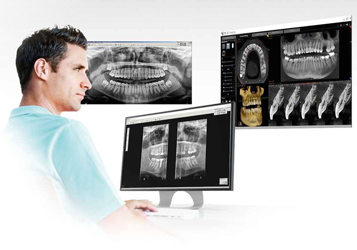 Imagenes panoramicas en 2d y 3d en clinica dental