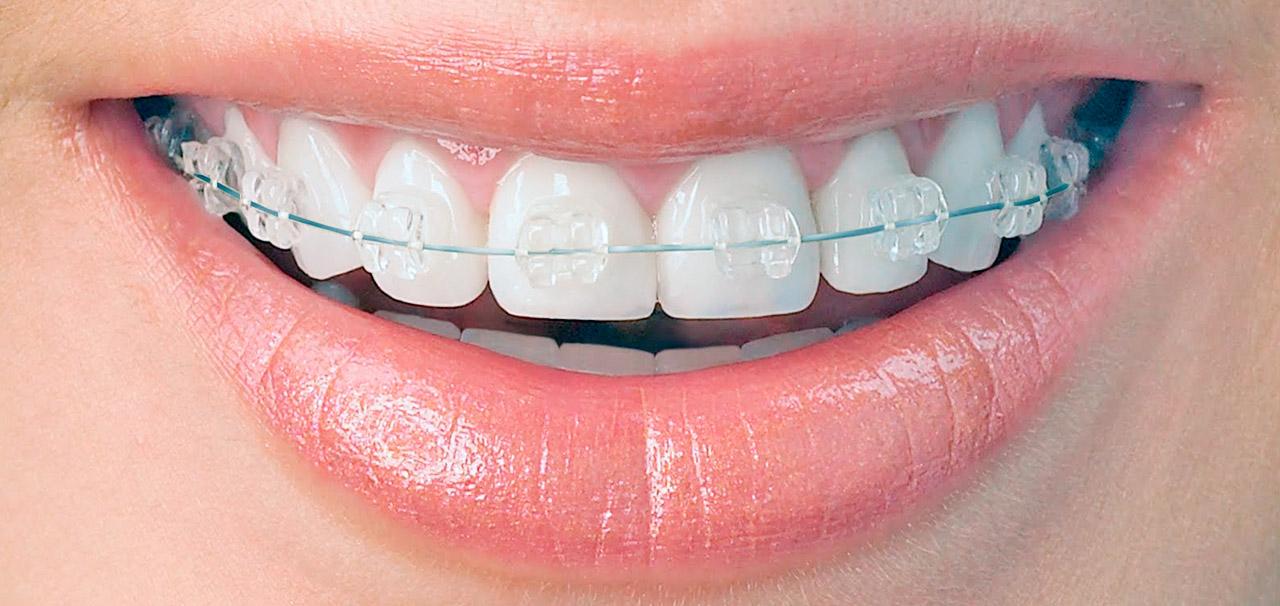 ortodoncia invisible barcelona sant boi de llobregat