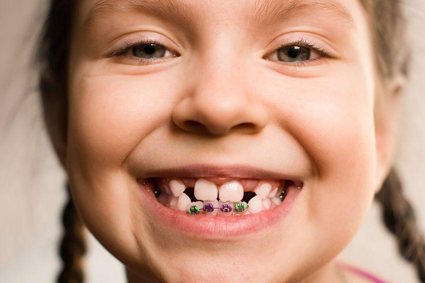 ortodoncia infantil sant boi de llobregat