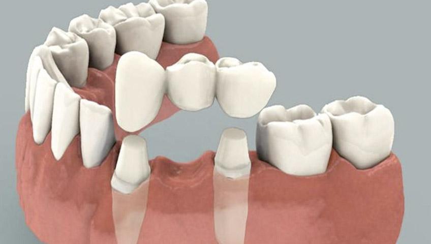 protesis dentales removibles precio en venezuela