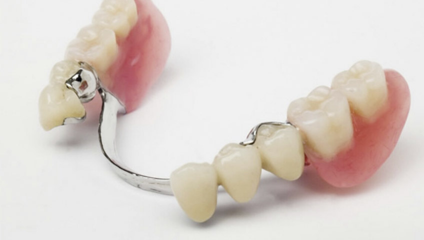 protesis dental removible sant boi de llobregat