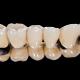 puentes coronas dentales sant boi llobregat en Barcelona
