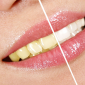 puentes coronas dentales sant boi llobregel en Barcelona