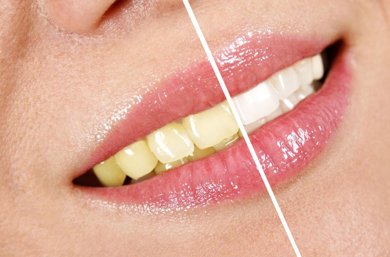tratamiento dientes amarillos sant boi de llobregat