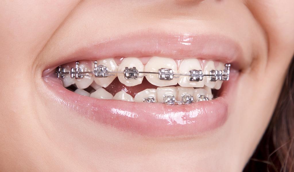 ortodoncia convencional Sant Boi del Llobregat