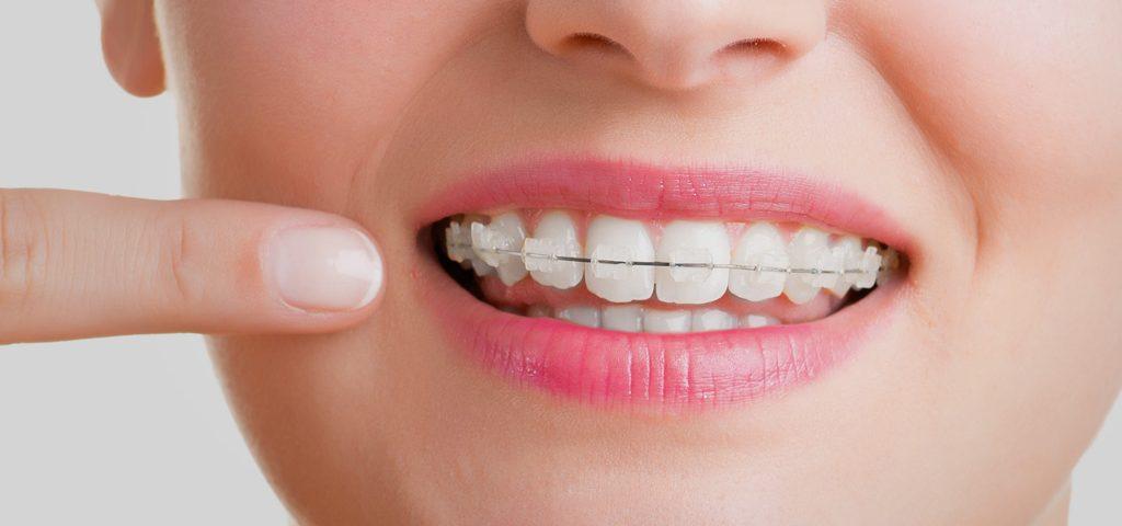 ortodoncia estetica Sant Boi del Llobregat
