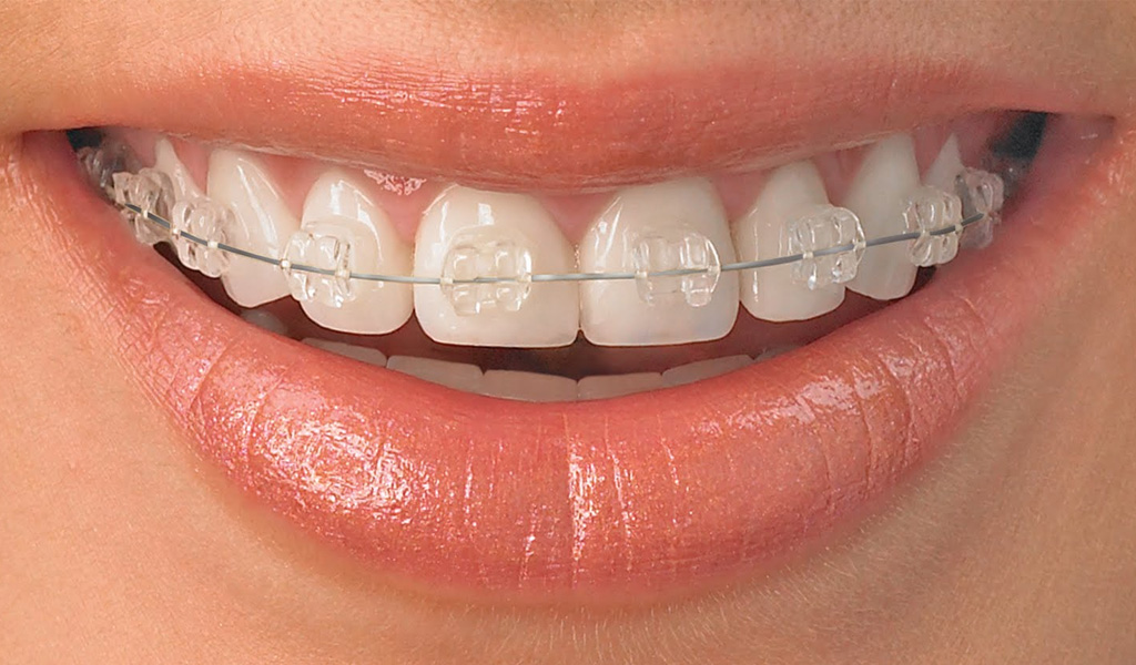 ortodoncia estetica zafiro Sant Boi del Llobregat