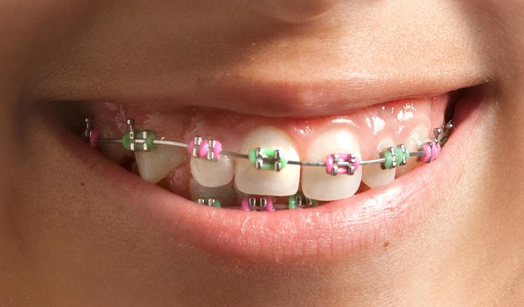 ortodoncia infantil Sant Boi del Llobregat