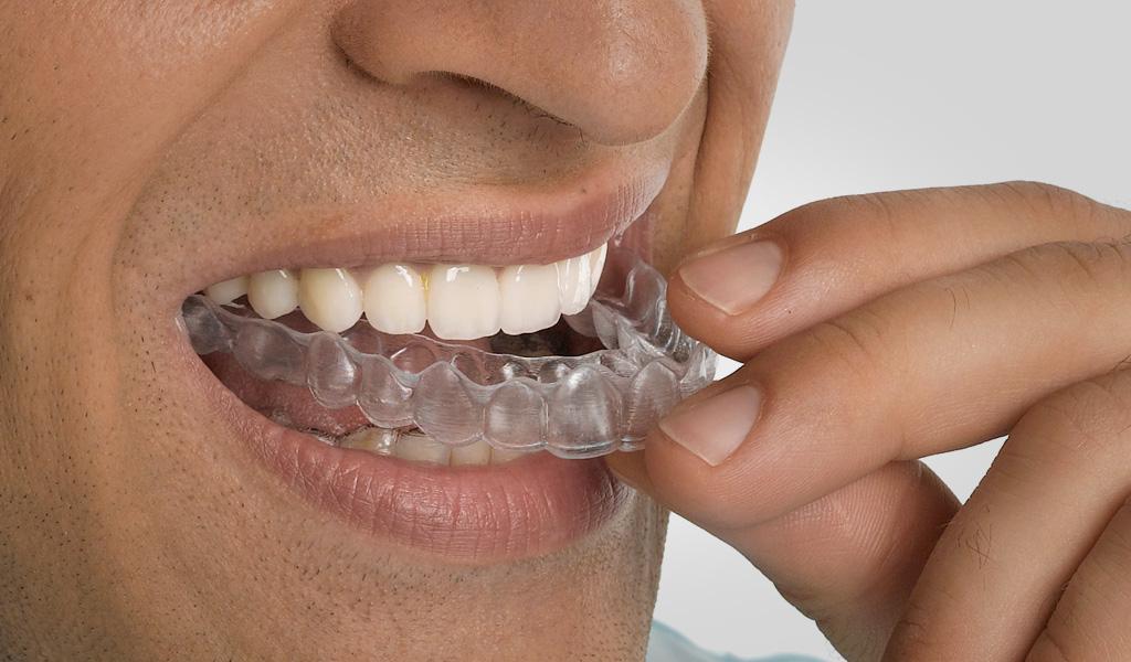 ortodoncia invisalign Sant Boi del Llobregat
