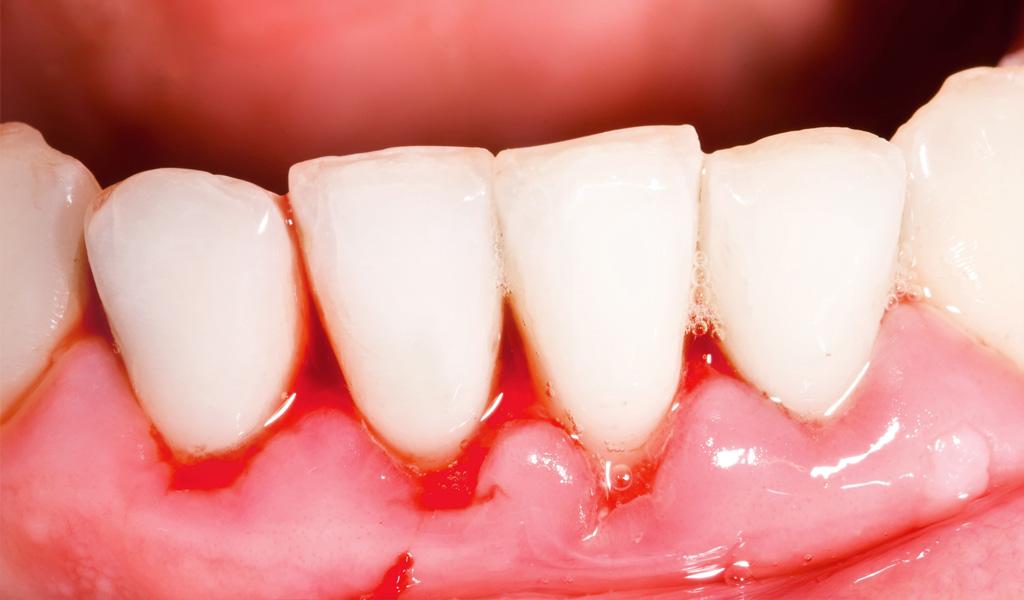 dentista de urgencias en Sant Boi de Llobregat
