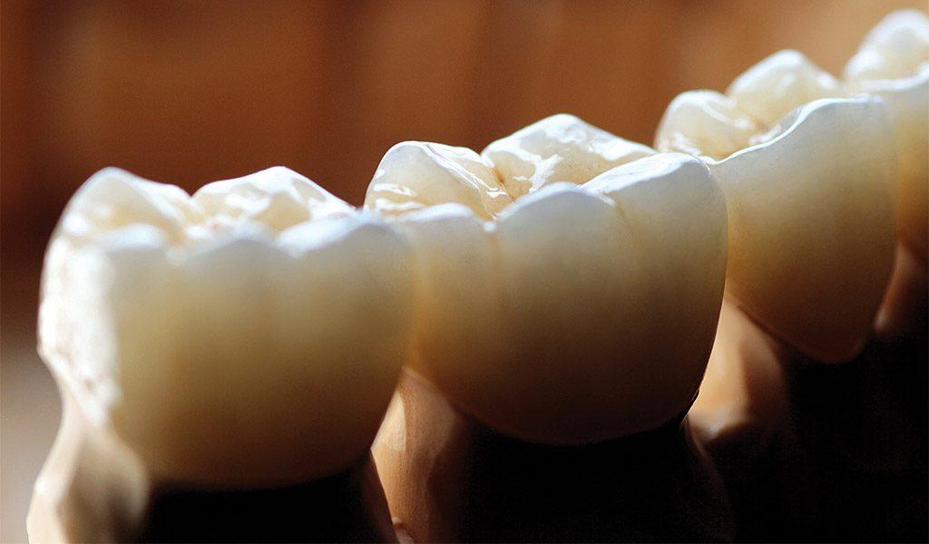 Estética dental en Sant Boi de Llobregat