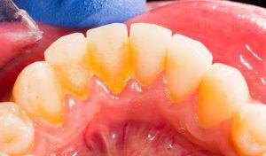 higiene dental en Sant Boi de Llobregat