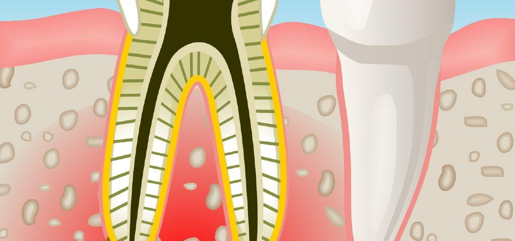 endodoncia en Sant Boi de Llobregat