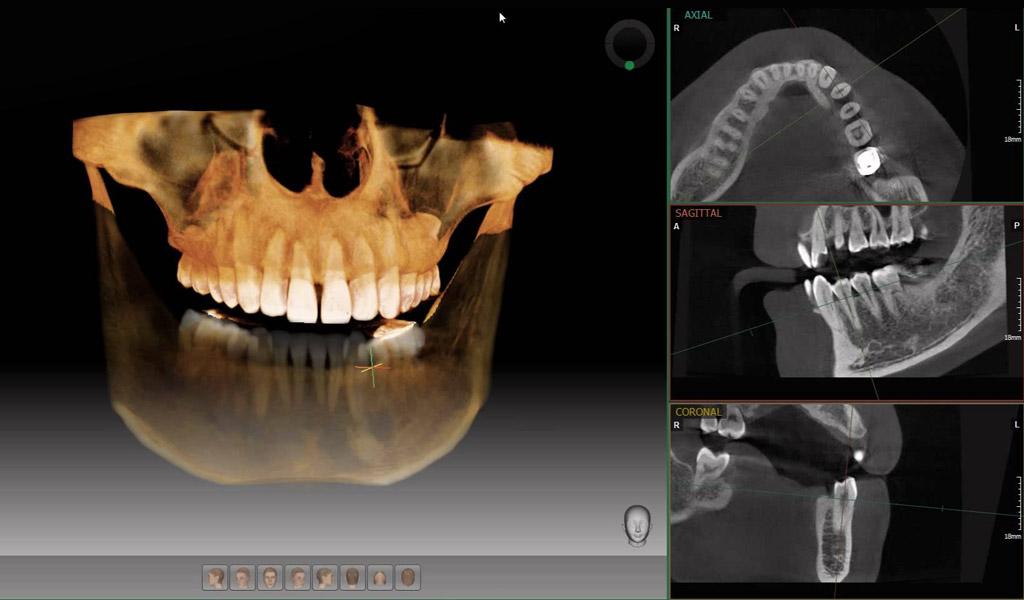 dentadura fijada con implantes dentales en Sant Boi de Llobregat