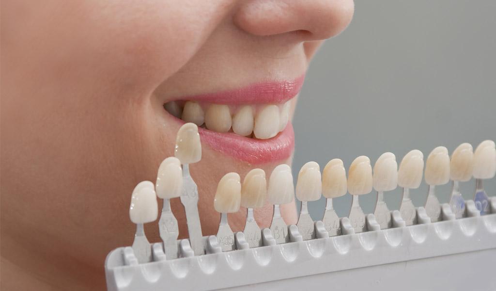 blanqueamiento dental en Sant Boi de Llobregat