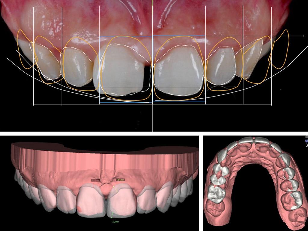 Carillas dentales sin rebajar el diente en Sant Boi de Llobregat