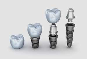 Implantología dental en Sant Boi de Llobregat