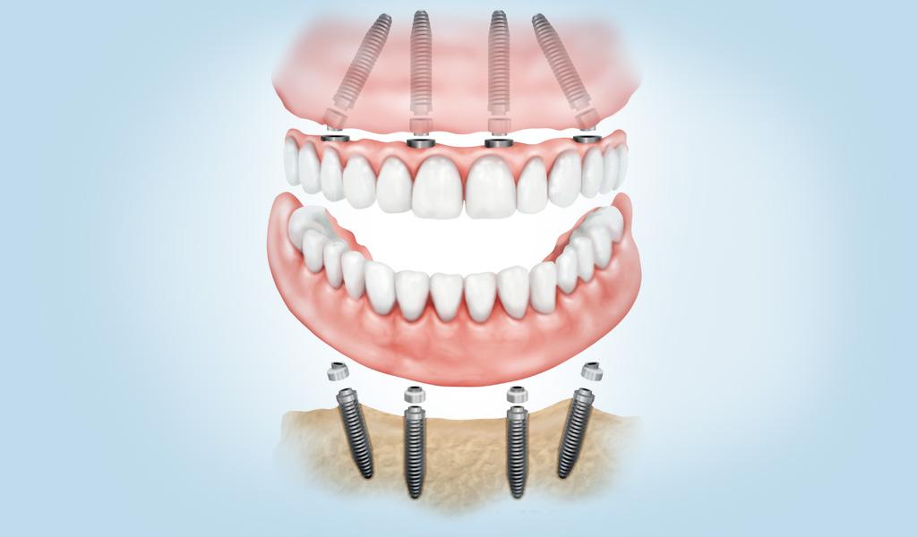 implantes dentales en Sant Boi de Llobregat