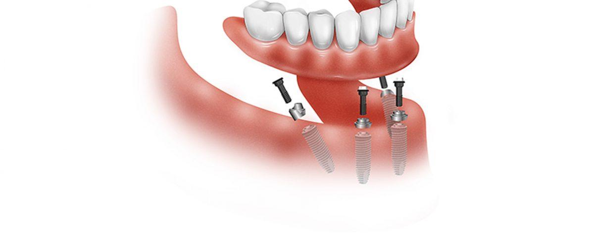 All on four, Centre Dental Basté